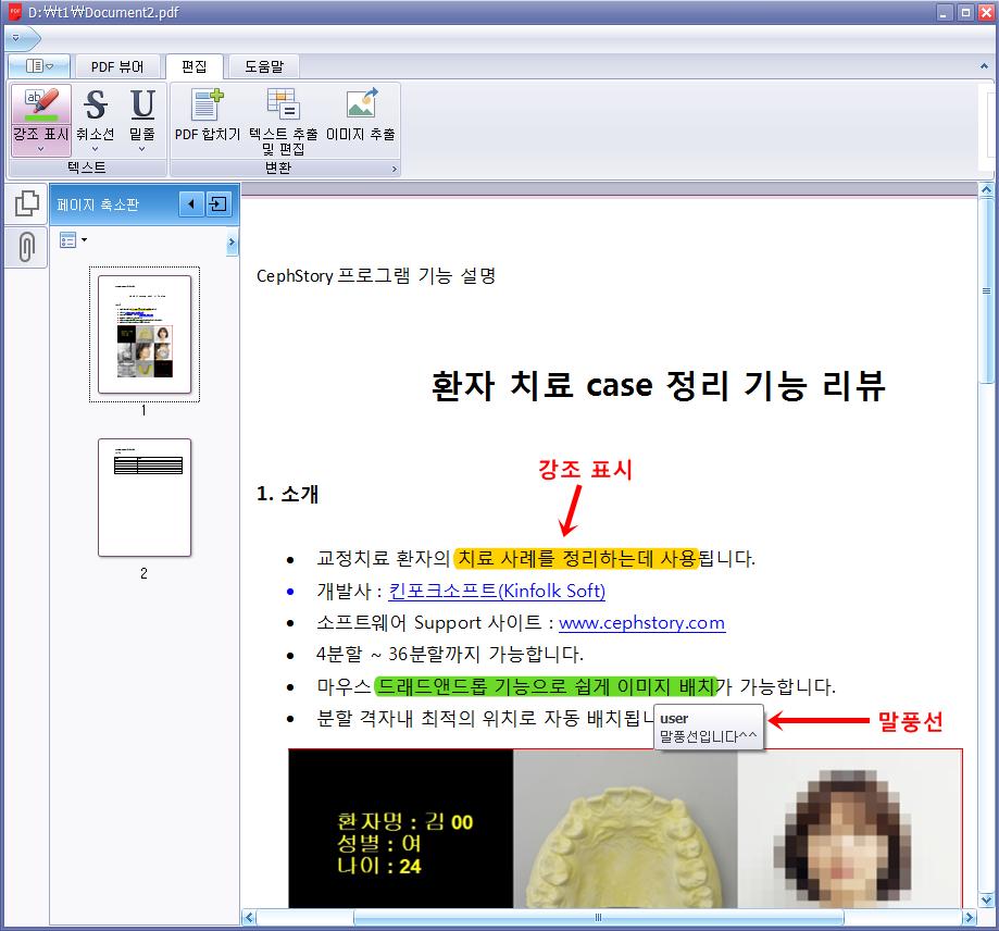 스마트 PDF 뷰어 - 강조 표시, 말풍선